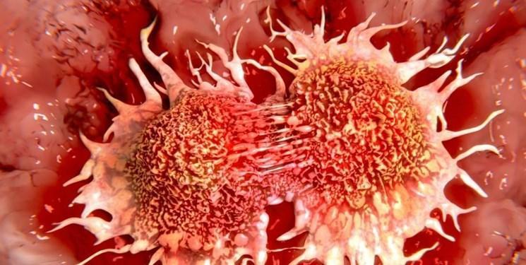 آلودگی که منجر به سرطان می شود