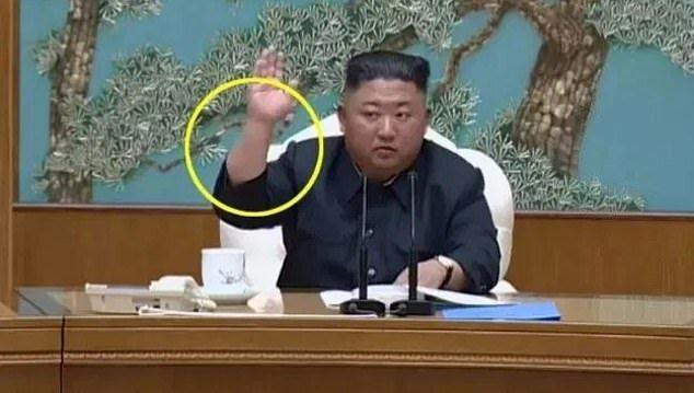 راز جای سوزن روی دست رهبر کره شمالی چیست؟، عکس