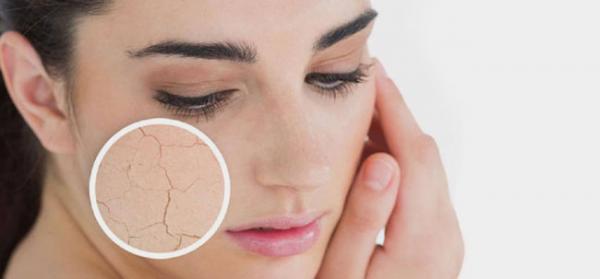 رفع خشکی پوست با ساده ترین روش های خانگی