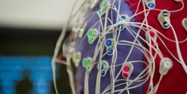 فراخوان طراحی و ساخت الکترودهای عصبی از طریق فناوران ایرانی