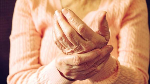 مخوف ترین علائم روماتیسم؛ از التهاب غشای قلب تا آبی شدن دست